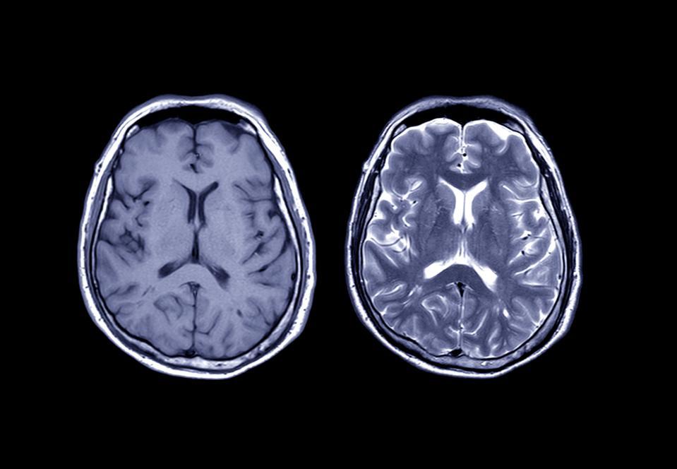 """便携式MRI可能会""""干扰""""医学成像和放射学"""