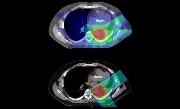 宾夕法尼亚大学最新研究成果:质子治疗肺癌在降低心脏剂量效应方面优于光子调强放疗