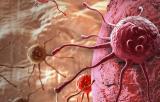 印第安纳研究人员获得NCI资助开发一种使放射治疗更有效的药物