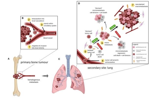 放射性药物治疗中的肿瘤结构分布很重要
