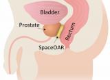 波士顿科学公司为前列腺癌患者推出减少放射副作用的产品