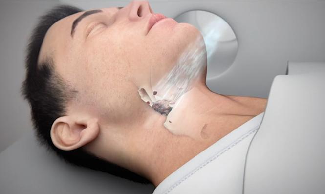 视频:解释硼中子俘获疗法(BNCT)作为一种新的癌症放射疗法