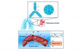 利用肺部气体磁共振成像装备实现对新冠出院患者肺功能无创评估