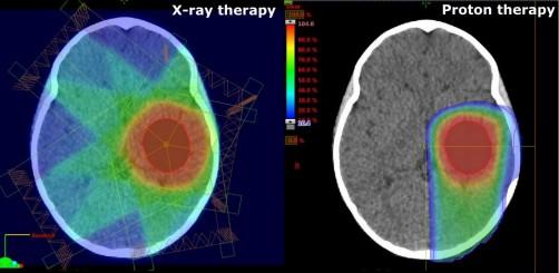 质子疗法是治疗脑癌儿童的灵丹妙药吗?