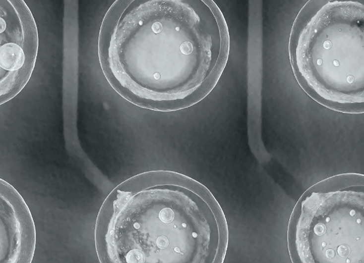 白皮书:2D X射线检查的局限性