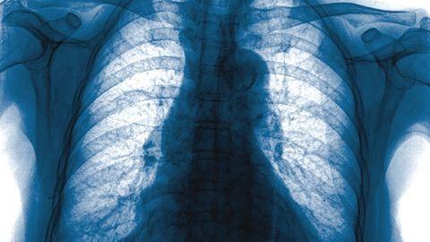 借助人工智能的胸部X光片可捕获更多肺癌