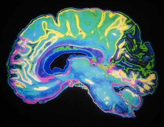美国研究团队开发出一种低成本便携式MRI头部扫描仪