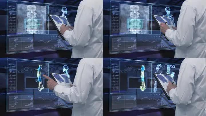 研究人员开发便携式X光机样机 可在任何地方自行检查骨骼