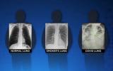 X射线图像显示新冠患者的肺部成像比吸烟者的肺部更糟糕