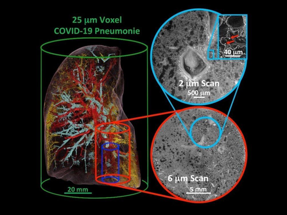 高分辨率断层扫描技术以微米为单位测量人类