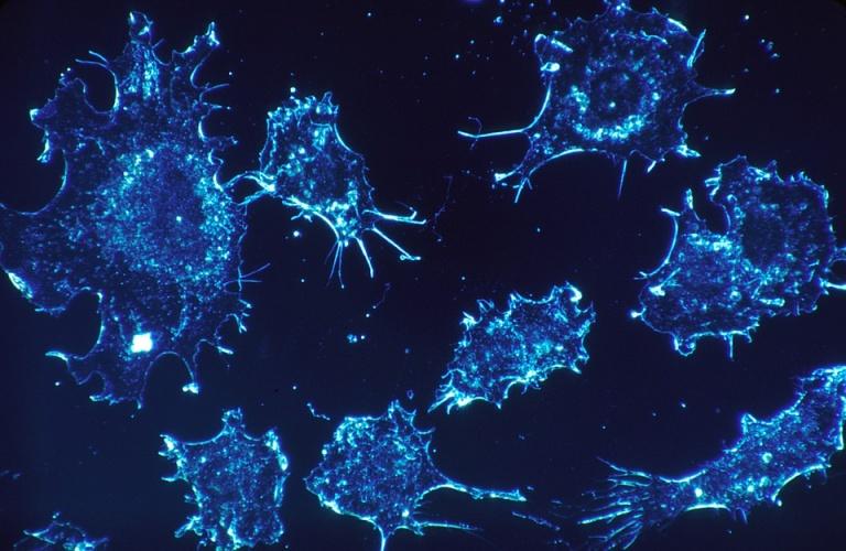 CERN线性电子加速器研究室:VHEE光束可精确打击肿瘤