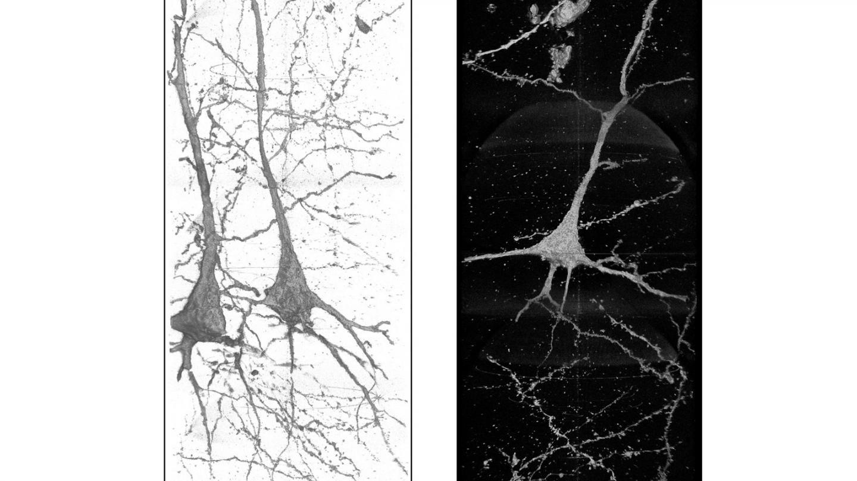 强大的X射线揭示了精神分裂症患者神经元的独特差异