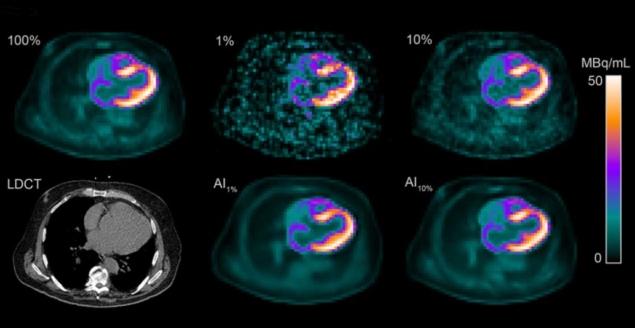通过更低的放射性示踪剂剂量实现更安全的心脏扫描