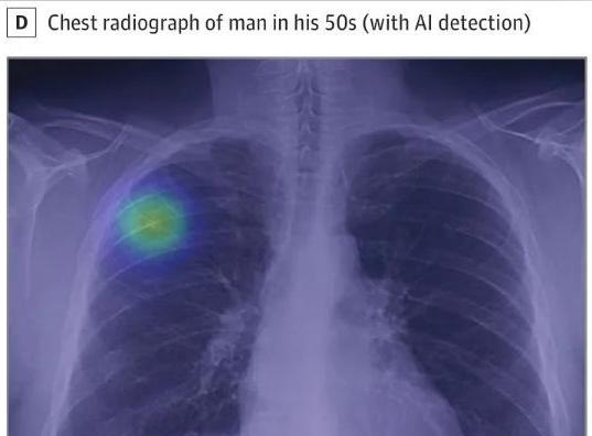 Lunit AI将部署在飞利浦X射线系统中