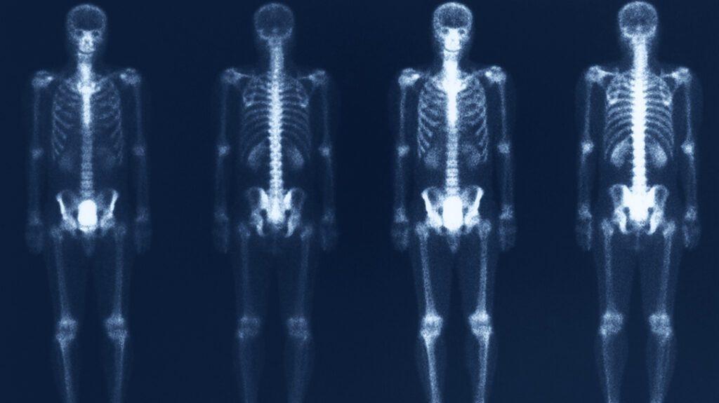 什么是核骨扫描?有什么用?需要注意什么?