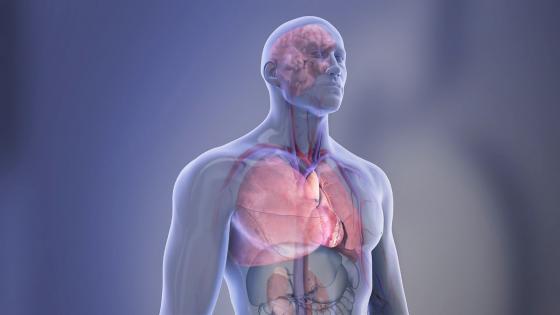 新型放射性示踪剂可安全有效地治疗神经内分泌肿瘤