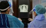 将AI与X射线结合使用可提供更快的诊断工具来检测COVID