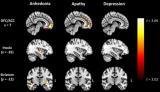 <p>核磁共振成像显示,年轻痴呆症患者的大脑奖赏回路退化</p>