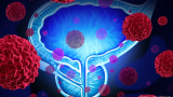 通过将 PET 成像添加到治疗计划中来改善前列腺癌控制