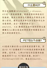 <p>淀粉样蛋白PET脑显像的操作技术</p>