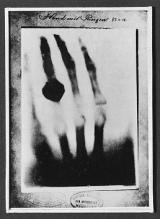 科技之光|X射线:人类延伸之眼